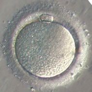 Ovule de femme